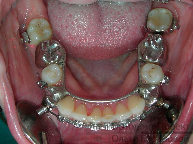 Orthodontie invisalign adulte