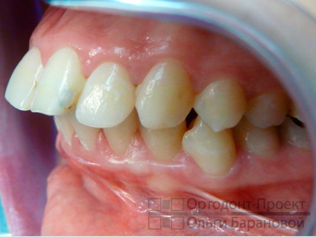 эластичность обеспечивает верхняя челюсть сильно выдвинута вперед отбирает излишнюю влагу